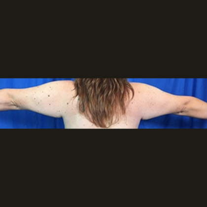 Arm Lift Before & After Patient #7191