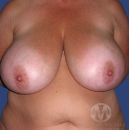 Breast Lift Before & After Patient #8929