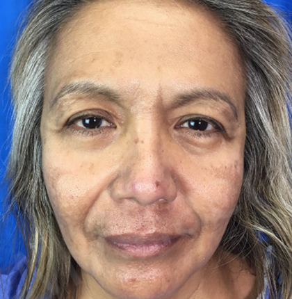 Blepharoplasty Before & After Patient #9001