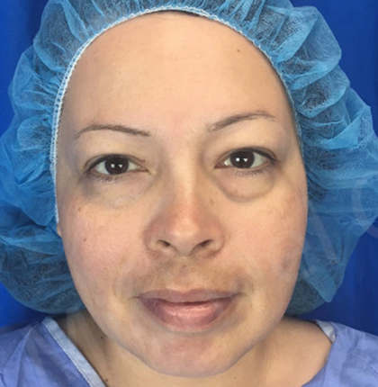 Blepharoplasty Before & After Patient #9006