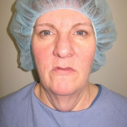 Facelift Before & After Patient #9012