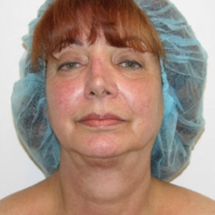 Facelift Before & After Patient #9017
