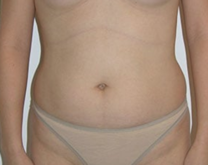 Liposuction Before & After Patient #8066