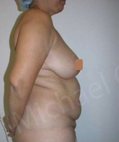 Mommy Makeover Before & After Patient #9090
