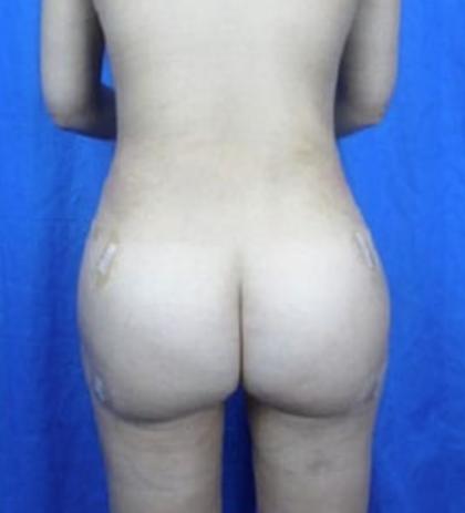 Brazilian Butt Lift Before & After Patient #7244