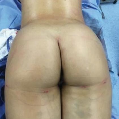 Brazilian Butt Lift Before & After Patient #8828