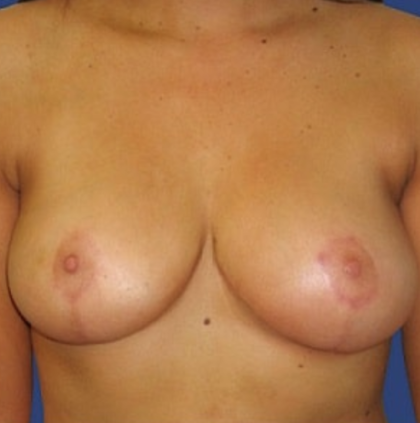 Breast Lift Before & After Patient #8919