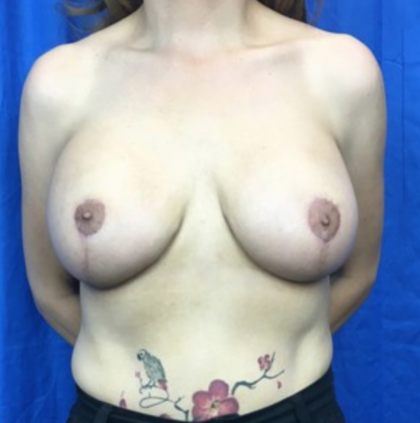 Breast Lift Before & After Patient #8924