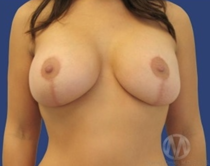 Breast Lift Before & After Patient #8954