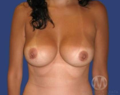 Breast Lift Before & After Patient #8960