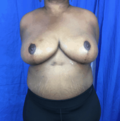 Breast Lift Before & After Patient #8959