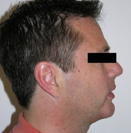 Chin Augmentation Before & After Patient #8975