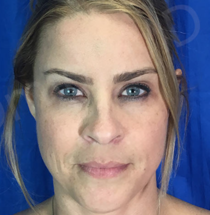 Blepharoplasty Before & After Patient #8998