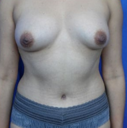 Fat Transfer Before & After Patient #7639