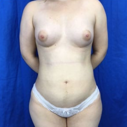 Fat Transfer Before & After Patient #7655