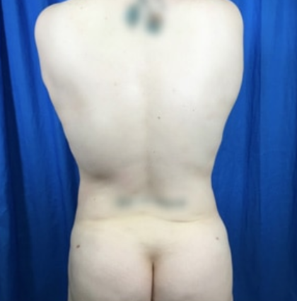 Liposuction Before & After Patient #7955