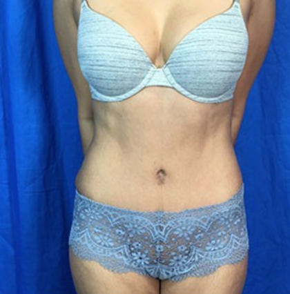 Liposuction Before & After Patient #7965