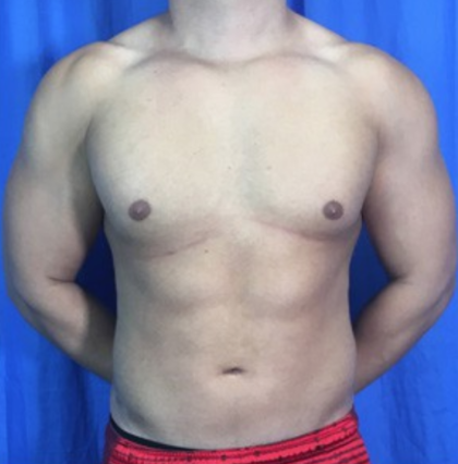 Liposuction Before & After Patient #9083