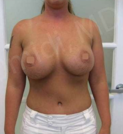 Mommy Makeover Before & After Patient #9093