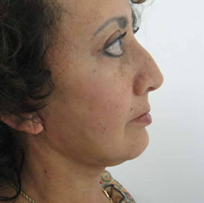 Brow Lift Before & After Patient #7811