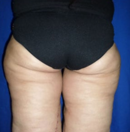 Thigh Lift Before & After Patient #8098