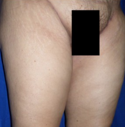 Thigh Lift Before & After Patient #8105
