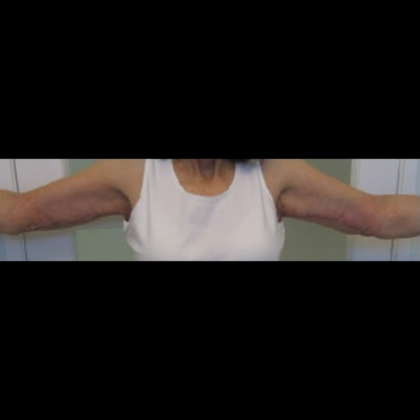 Arm Lift Before & After Patient #7222