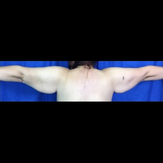 Arm Lift Before & After Patient #7225