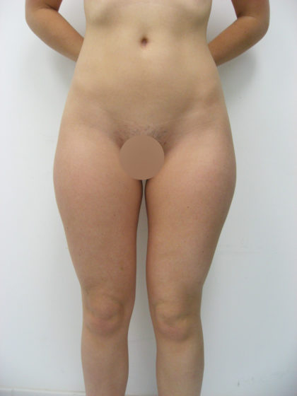 Liposuction Before & After Patient #8065