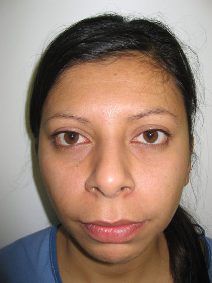 Chin Augmentation Before & After Patient #7860