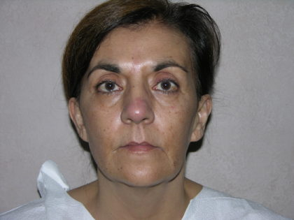Facelift Before & After Patient #7914