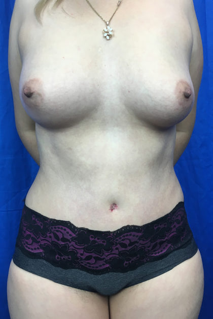 Fat Transfer Before & After Patient #7646