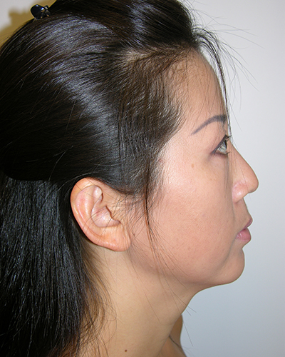 Facelift and Necklift Before & After Patient #7869