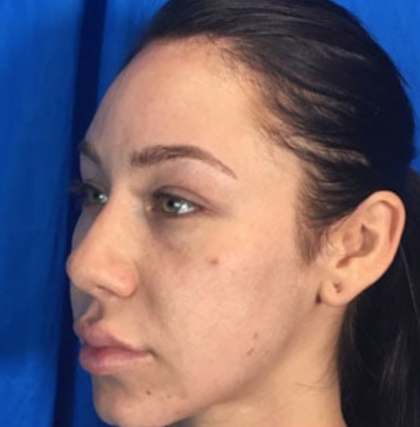 Rhinoplasty Before & After Patient #9111