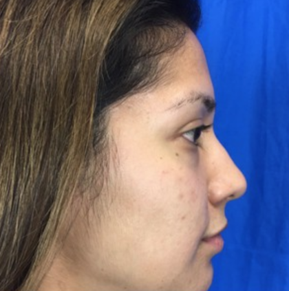 Rhinoplasty Before & After Patient #9179