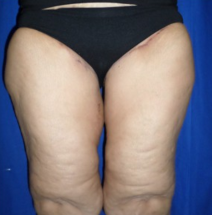 Thigh Lift Before & After Patient #9197