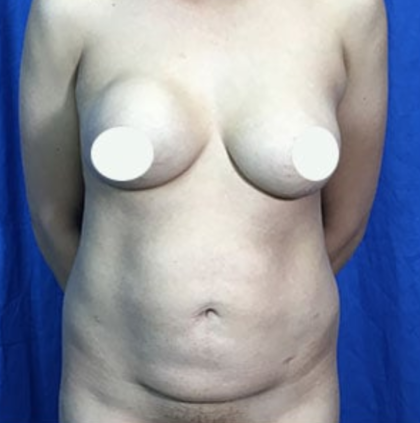 Tummy Tuck Before & After Patient #9207