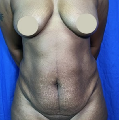 Tummy Tuck Before & After Patient #9213
