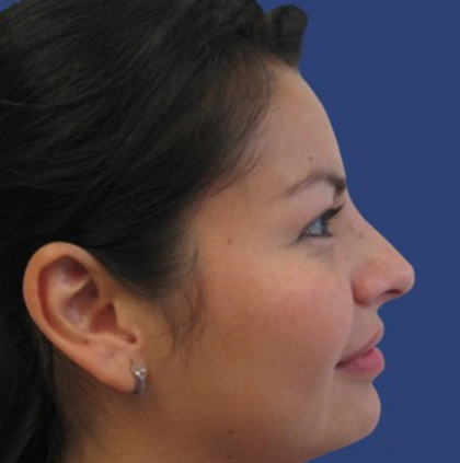 Rhinoplasty Before & After Patient #9172