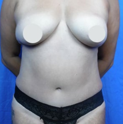 Tummy Tuck Before & After Patient #9218