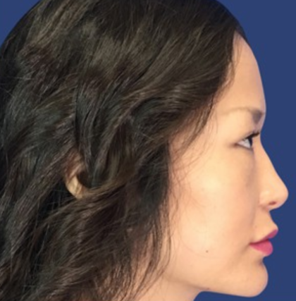 Rhinoplasty Before & After Patient #9125