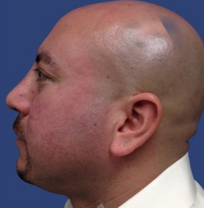 Rhinoplasty Before & After Patient #9160