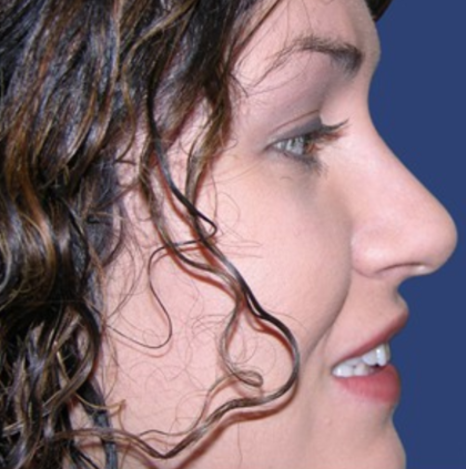 Rhinoplasty Before & After Patient #9167