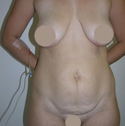 Tummy Tuck Before & After Patient #9250