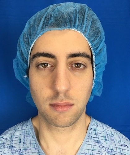 Rhinoplasty Before & After Patient #9382