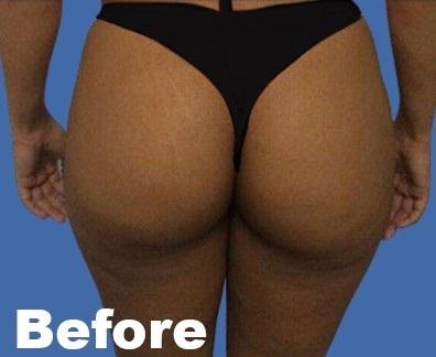 Brazilian Butt Lift Before & After Patient #9346