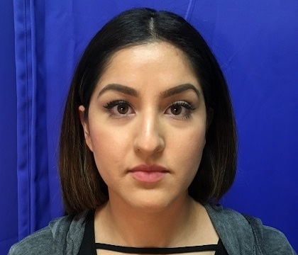 Rhinoplasty Before & After Patient #9373