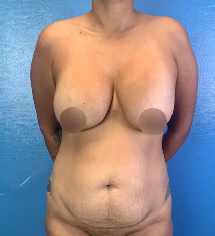 Tummy Tuck Before & After Patient #9463