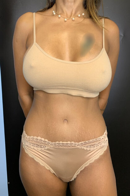 Tummy Tuck Before & After Patient #9759