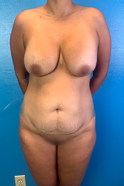 Tummy Tuck Before & After Patient #9781
